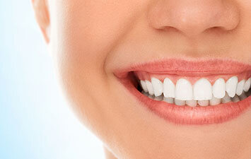 Teeth Whitening Brooklyn