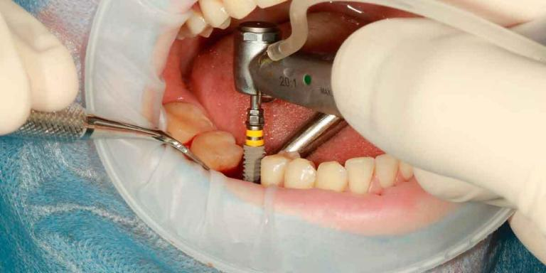 Brooklyn Dental Implants vs. Dental Bridges
