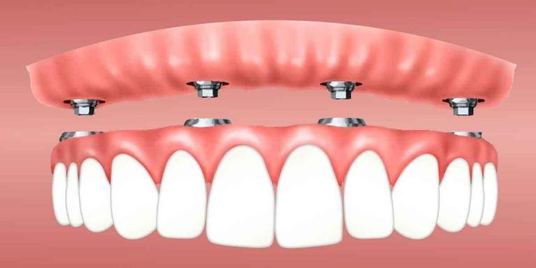 Dentures versus Implants and Why You Need Affordable Dentures Brooklyn 11229 Treatment