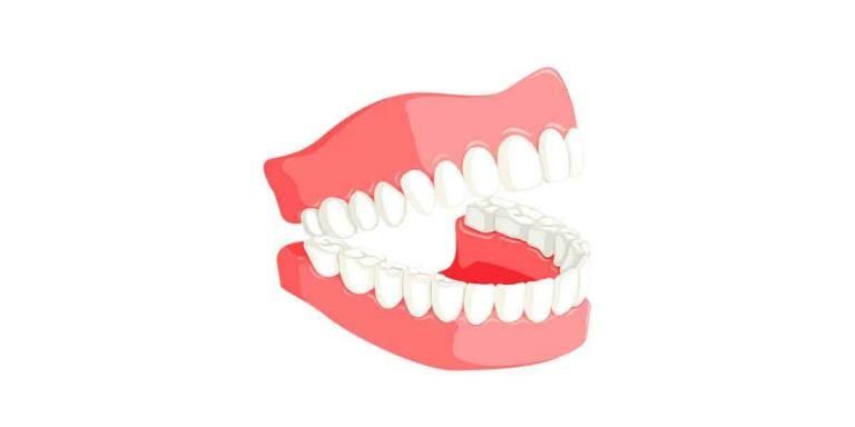 Professional Same Day Dentures Near Me Brooklyn 11229: Myths About Dentures