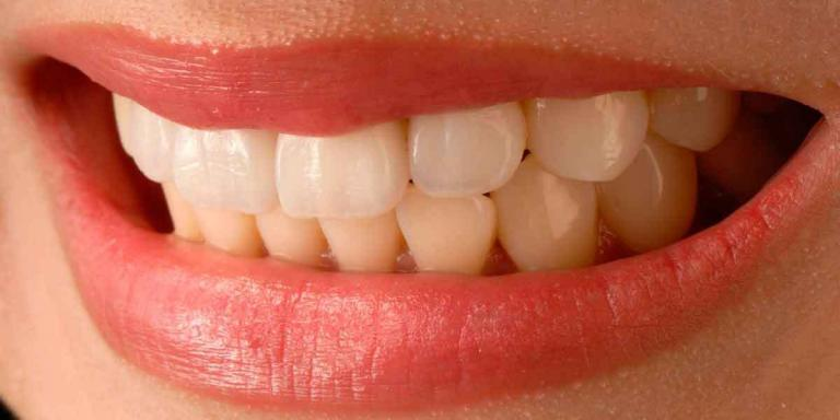 Reasons Why Porcelain Veneers Fail