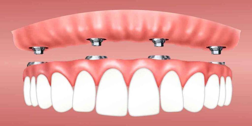 Understanding Mini Dental Implants 2 of 2